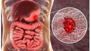 Язвенная болезнь: причины проявления и опасные осложнения